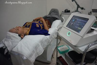 Review Viva Fractional by Viva Venus [The Clinic Beautylosophy Indonesia]