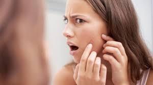 Bahaya Jerawat membandel akibat HIPERANDOGEN