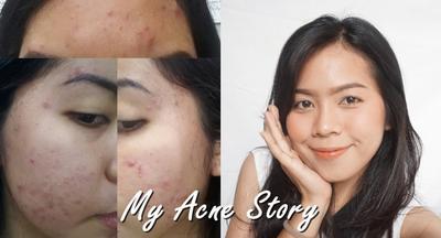 My Acne Story ! 5 TAHUN FIGHT DENGAN DOKTER & KLINIK KECANTIKAN