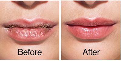 Merawat Bibir