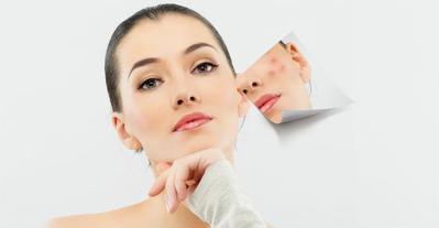 5 Rekomendasi Sabun Wajah untuk Kulit Berjerawat