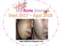 My Acne Story : Perjuangan Melawan Jerawat