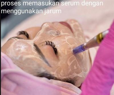 Mau Wajah Glowing Seperti Wanita Korea..? Yuk Cobain Bbglow Treatment