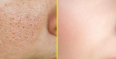 7 Tips untuk mengecilkan pori-pori kamu