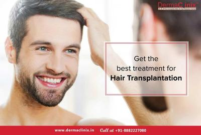 What to Expect from a Hair Transplantation Treatment?