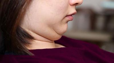 Menghilangkan Lemak Pada Bagian Wajah Dan Leher