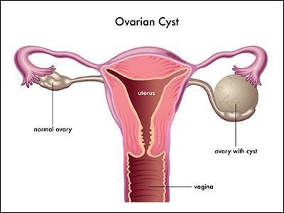 Tips Sederhana yang Tak Biasa ini Dapat Mengecilkan Kista Ovarium