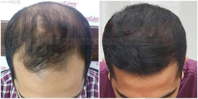 Get Back Your Hairs By Hair Transplant At DermaClinix