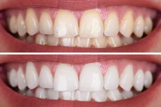 5 Jenis Buah Ini Dapat Membantu Memutihkan Gigi