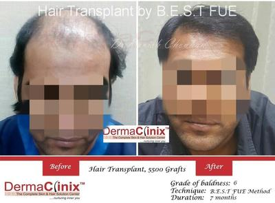 What to Consider for Successful Results with Hair Transplant Surgery?
