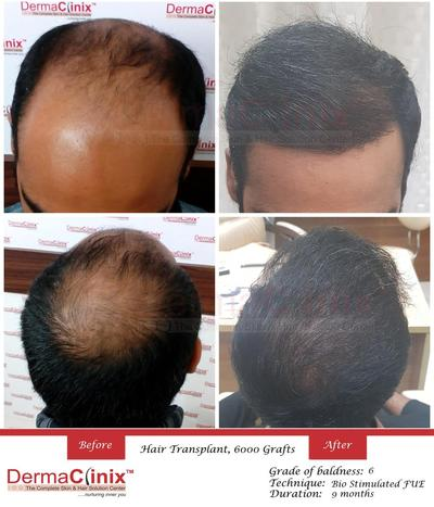 Is Hair transplant a Safe Option?