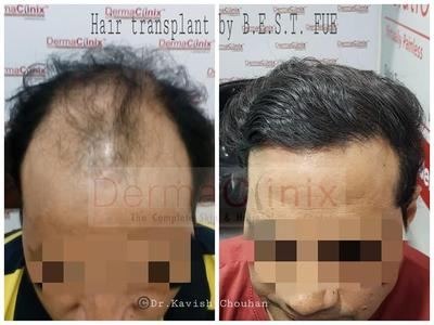 Hair Transplantation in Men - A Common Way to Hair in Empty Areas