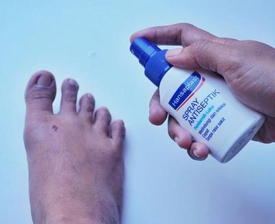 Hansaplast Spray Antiseptik, pembersih luka Gak Pake Perih