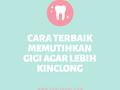 Cara Terbaik Memutihkan Gigi Agar Lebih Kinclong